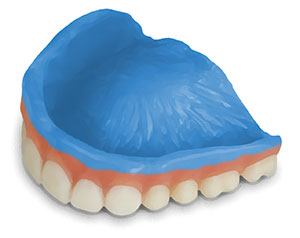 primer on upper denture