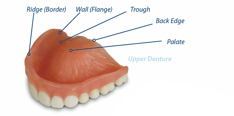 anatomy of an upper denture